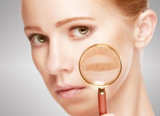 Reducing Pigmentation And Dark Spots