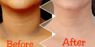 Easy Ways To Remove Dry And Dark Skin Around Your Neck!