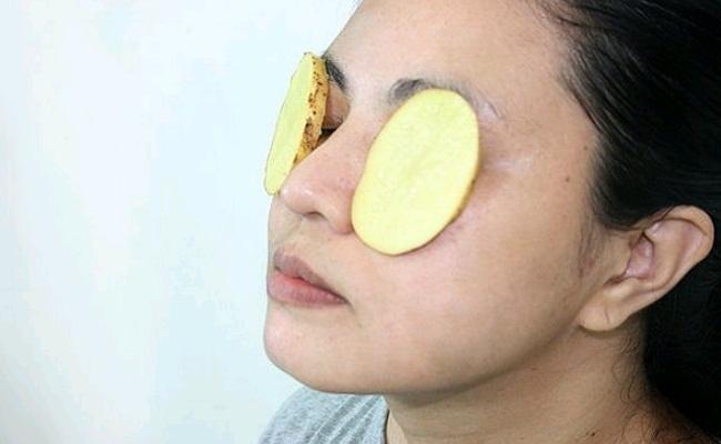 Potato Slices for puffy eyes