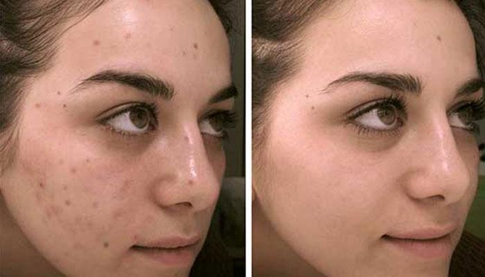 Dark spot and scar remover