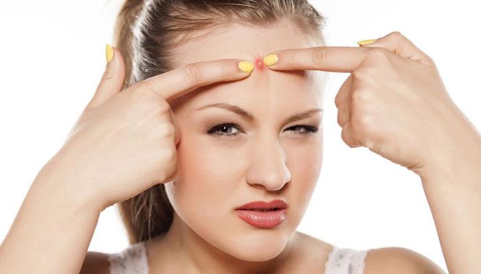 Treat Pimples