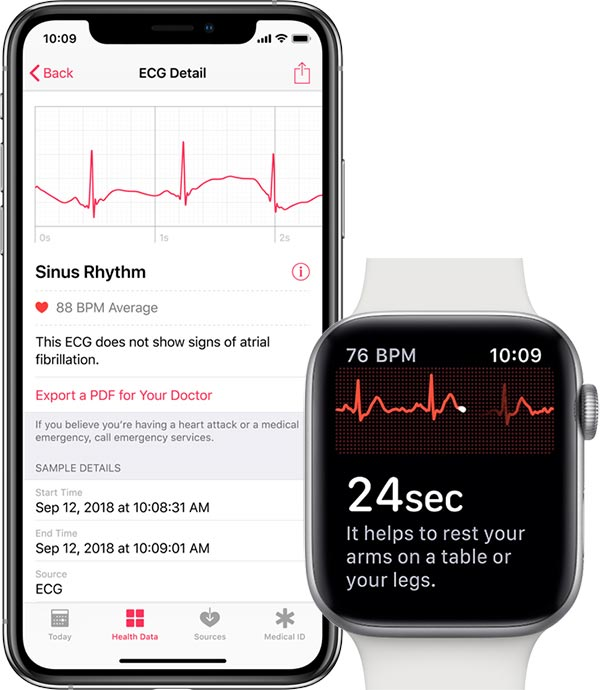 Apple watch series 4 ECG option
