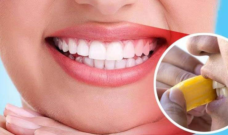 banana peel for Whiten Teeth