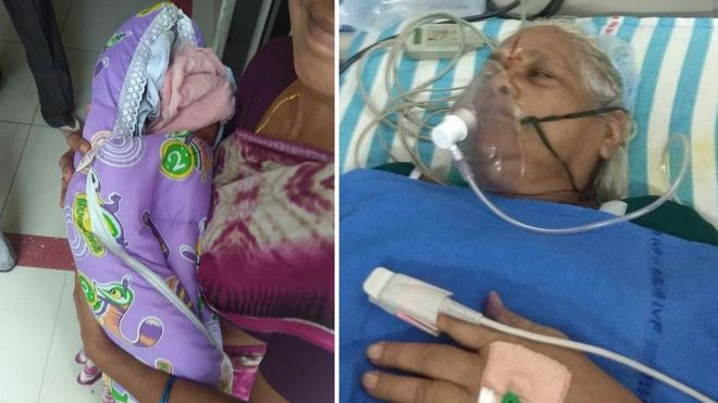 73-year-old woman delivers twins