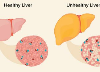 Cure for fatty liver