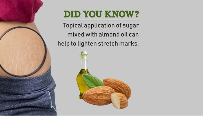 Almond Oil and Sugar to lighten Stretch Marks
