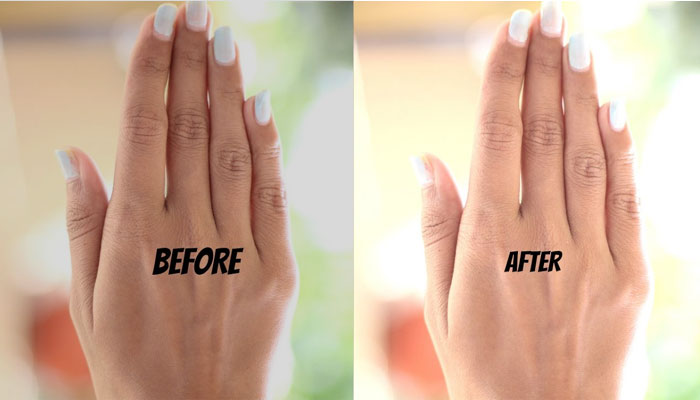 Effective Tips For Removing Sun Tan | Sun Tan Effect Before And After