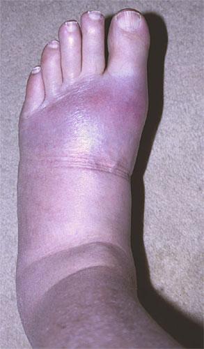 Symptoms Of High Uric Acid