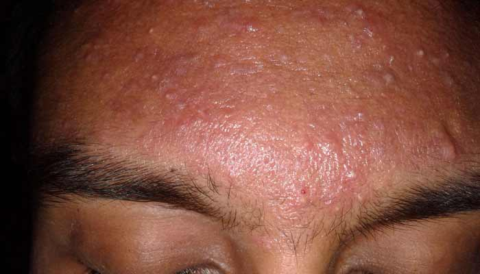 Pimples on Face Removal Tips