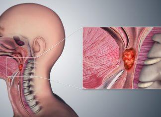 Symptoms Of Throat Cancer