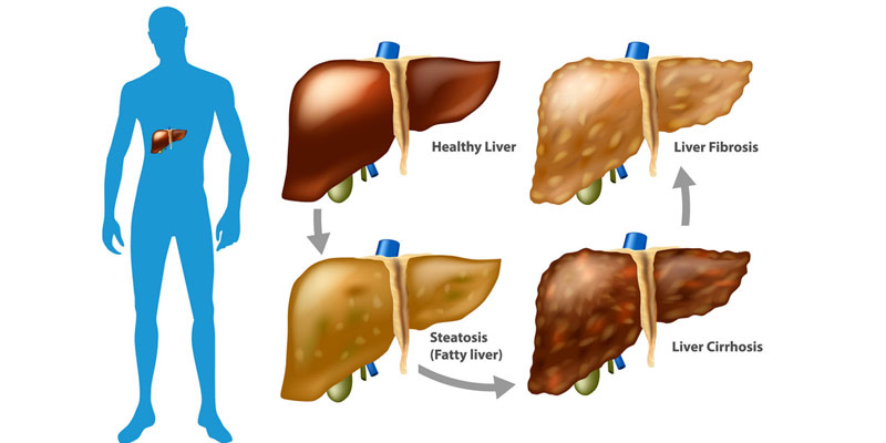 what causes liver damage