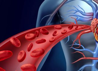 Do blood thinners make the blood thin