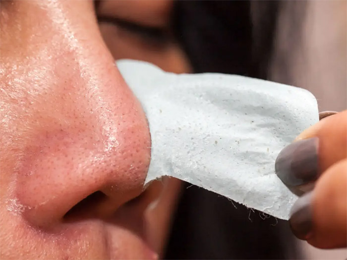 How to cure blackheads