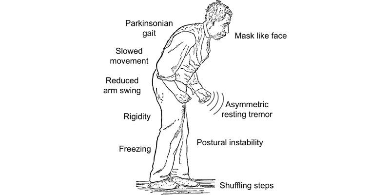 Parkinson Disease Symptoms