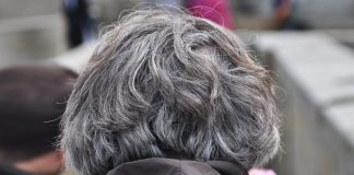 Premature Graying of Hair | Canities