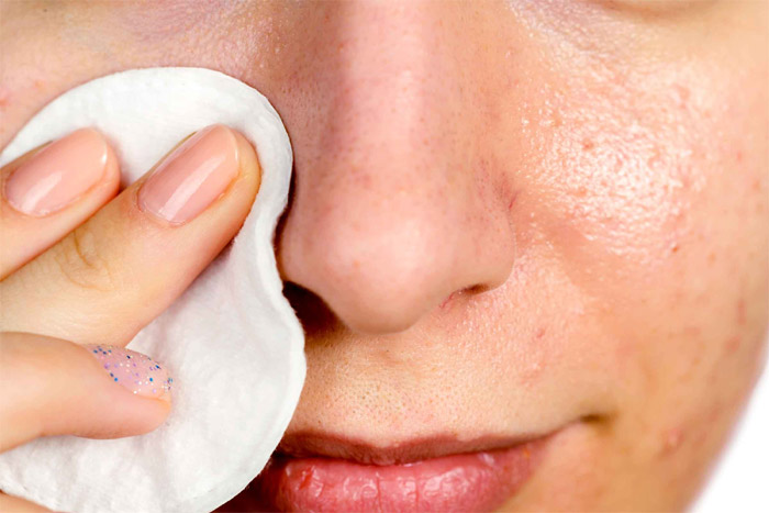 Prevention from blackheads