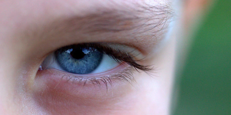 Blue Eye | Eye Diseases and Disorders