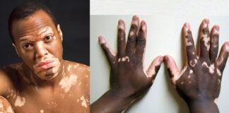Vitiligo Treatment and Causes