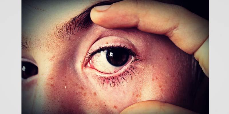 Eye Flu Causes