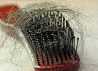 Hair Fall | Home Remedies For Hair Fall