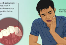 Man In Pain | Home Remedies For Wisdom Tooth Ache