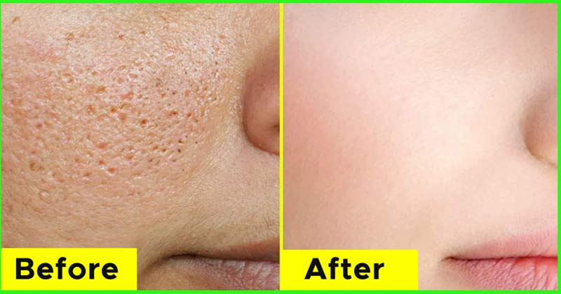 Face With Open Pores | Home Remedies Open Pores