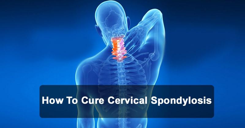 how to cure cervical spondylosis